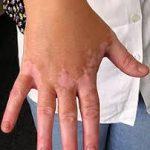 علاج البهاق , اخطر الامراض الجلديه مرض البهاق
