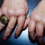 اعراض الروماتيزم , ماهى اسباب مرض الروماتيزم