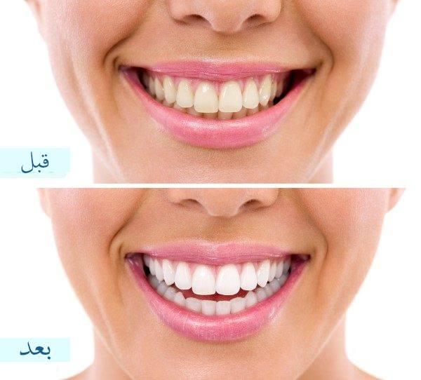 صورة كيفية تبييض الاسنان , طرق طبيعيه لتبييض الاسنان في المنزل