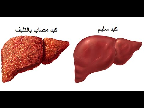 صورة علاج تليف الكبد , التعافى من تليف الكبد