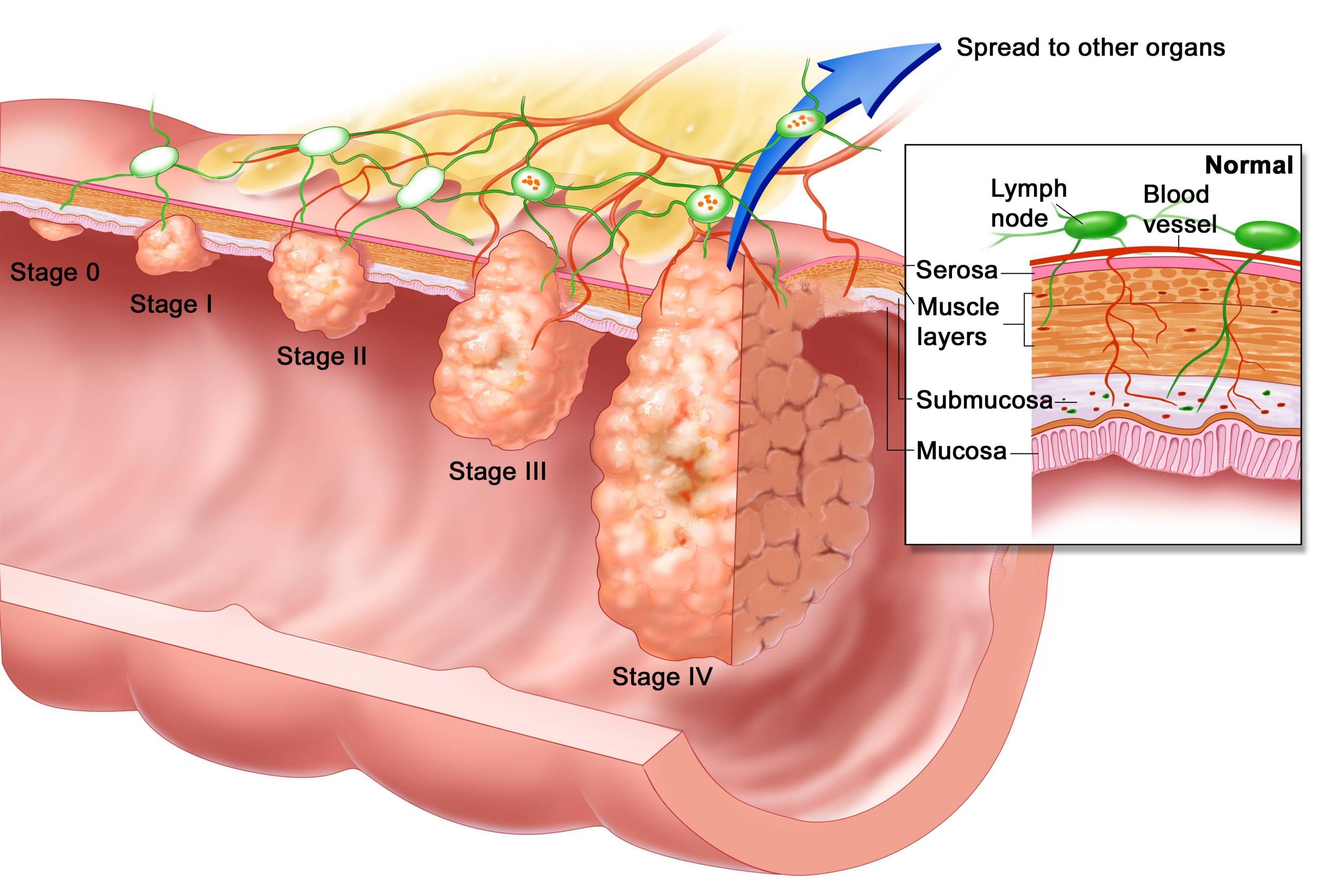 صورة اعراض سرطان المريء , كيفيه الاصابه بسرطان المرئ