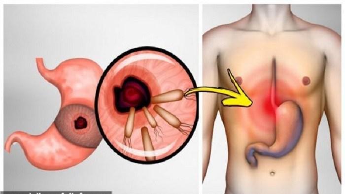 صورة اعراض جرثومة المعدة , اسباب جرثومة المعدة