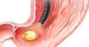 بالصور اعراض جرثومة المعدة , اسباب جرثومة المعدة 5713 2 310x165