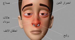 صوره علاج حساسية الانف , العلاج السحري لحساسيه الانف