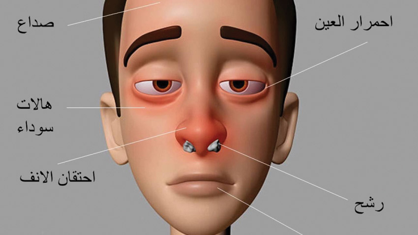 صور علاج حساسية الانف , العلاج السحري لحساسيه الانف