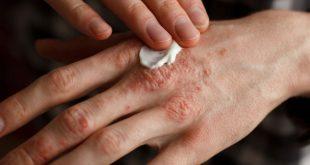 علاج الصدفية بالاعشاب , اسباب وطرق علاج مرض الصدفيه
