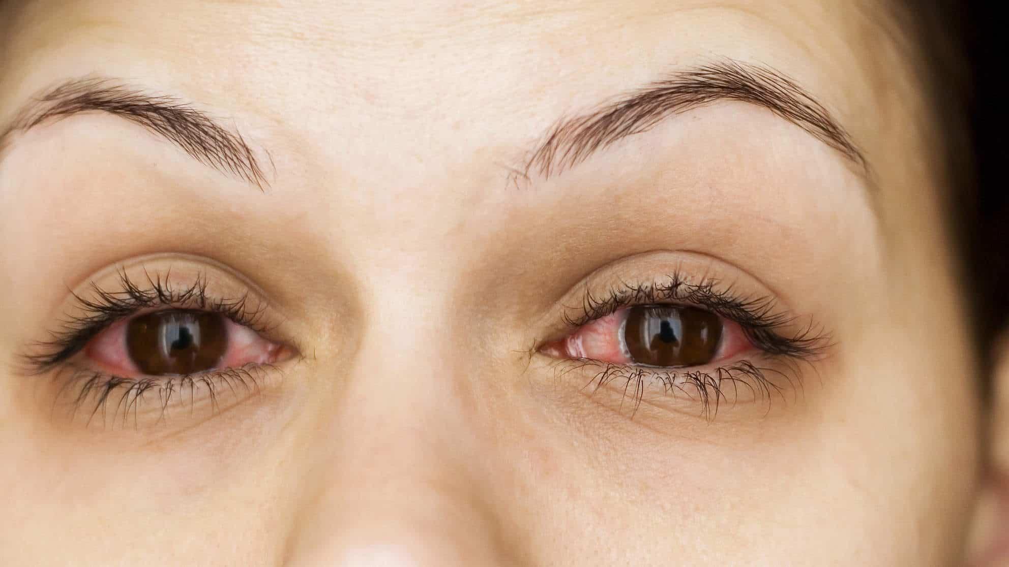 صور علاج حساسية العين , وصفات لعلاج حساسية العين