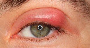 صوره علاج حساسية العين , وصفات لعلاج حساسية العين