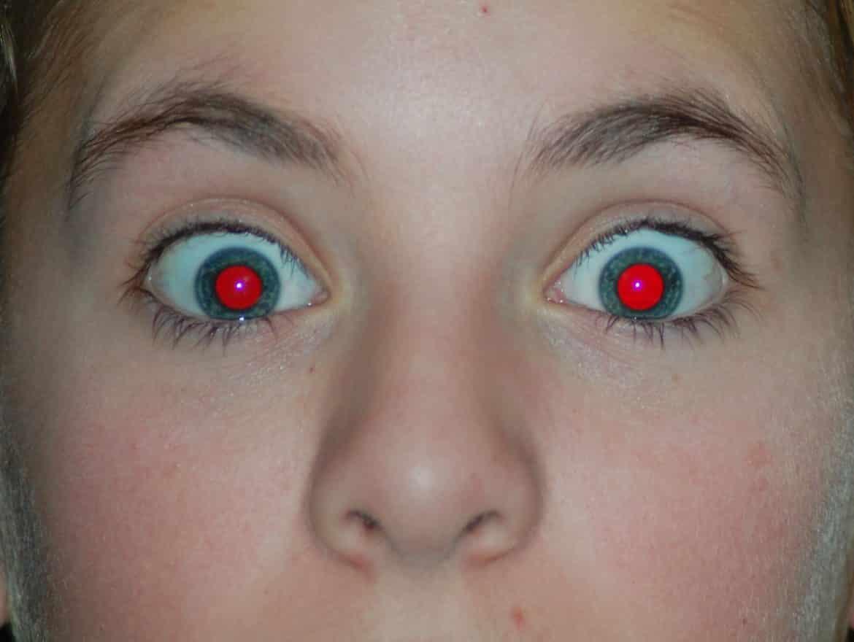 صورة العين الحمراء , صور عيون حمراء جدا