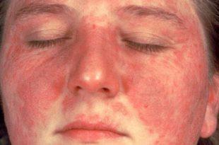صورة مرض الذئبة الحمراء , تعرف على مرض الذئبة الحمراء