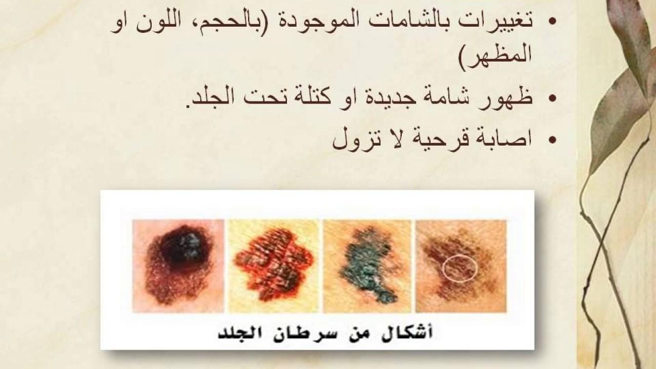 صورة اعراض مرض السرطان , اختلاف اعراض مرض السرطان