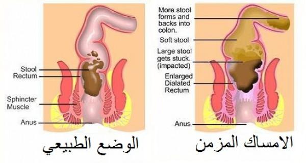 بالصور علاج الامساك , الوسائل المتعلقة بعلاج الامساك 4174