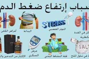صور اسباب ارتفاع ضغط الدم , عوامل واسباب الارتفاع بضغط الدم