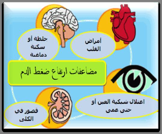صوره اسباب ارتفاع ضغط الدم , عوامل واسباب الارتفاع بضغط الدم