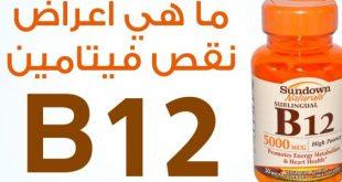 ما هو فيتامين b12 , اسباب وعلاج واعراض نقص فيتامينb12
