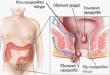 صور اعراض البواسير , علامات مرض البواسير و طرق التخفيف من الامها