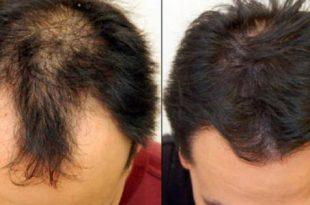 صوره علاج تساقط الشعر للرجال , علاج للصلع المبكر و التساقط للرجال مهم
