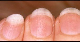 بالصور امراض الاظافر , علامات على اظافرك تدل انك مصاب بمرض ما 261 3 310x165