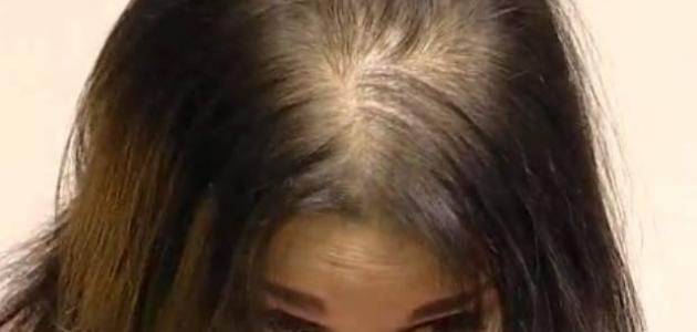 صوره شعري خفيف , اسباب الشعر الخفيف التى تعانى منه المراه وعلاجه