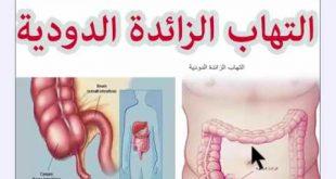 صور اعراض الزائدة الدودية , الزائده الدوديه و اخطارها