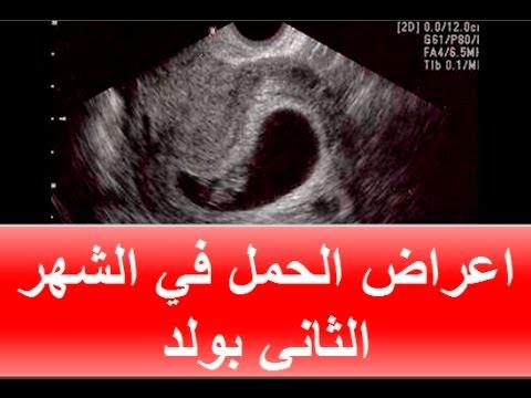 صورة علامات الحمل بولد في الشهر الثاني , كيف تعرفين انك حامل في ولد وانت في الشهر الثاني