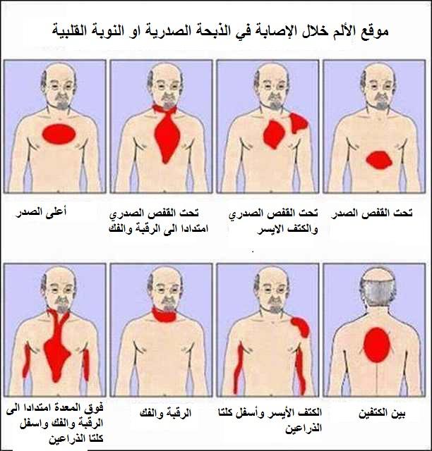 بالصور اعراض الذبحة الصدرية , تعرف على اسباب واعراض الذبحة الصدرية 504 2