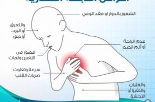 صور اعراض الذبحة الصدرية , تعرف على اسباب واعراض الذبحة الصدرية