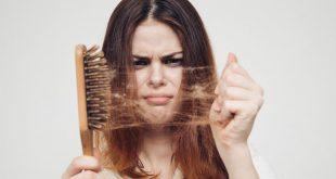صوره تساقط الشعر , سبب وعلاج تساقط الشعر