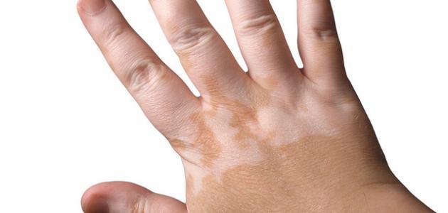 بالصور علاج البهاق بالاعشاب , طريقة فعالة في علاج البهاق بالاعشاب 579 1
