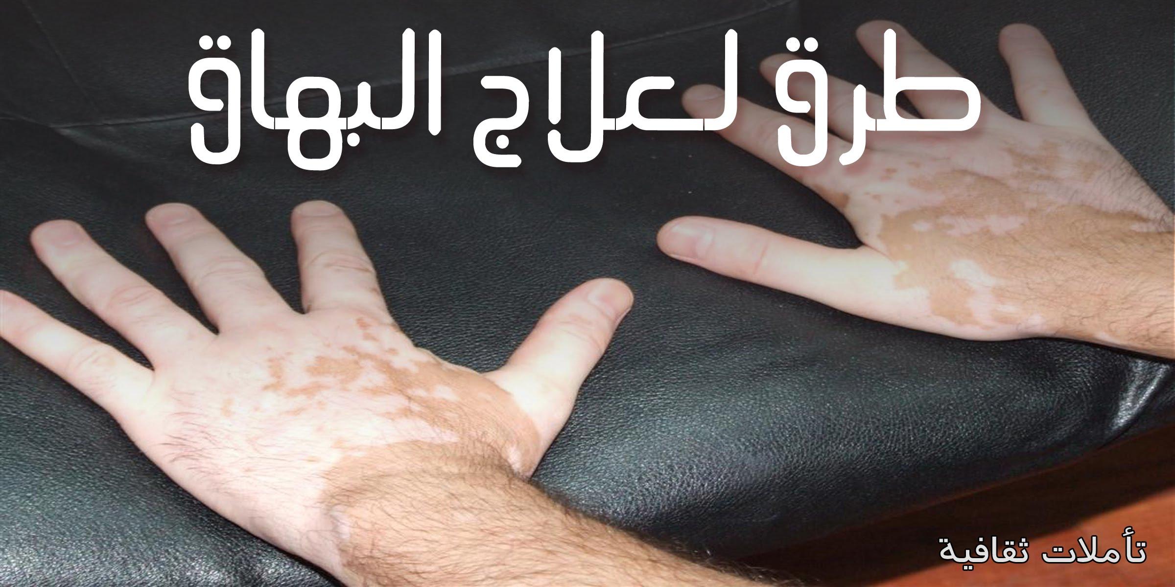 بالصور علاج البهاق بالاعشاب , طريقة فعالة في علاج البهاق بالاعشاب 579 2
