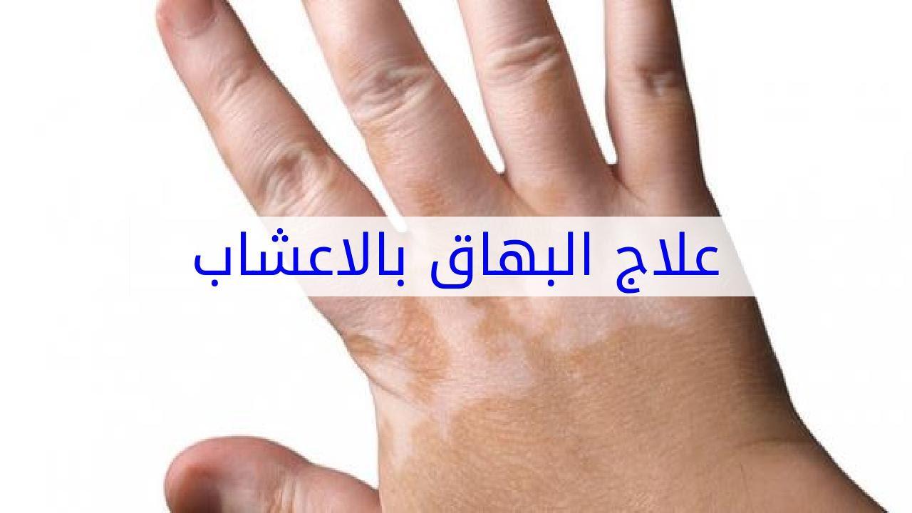 بالصور علاج البهاق بالاعشاب , طريقة فعالة في علاج البهاق بالاعشاب 579