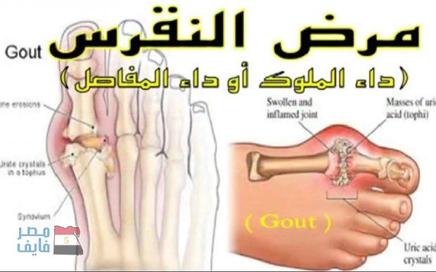 بالصور اعراض النقرس , اهم الاعراض لمرض النقرس 6374
