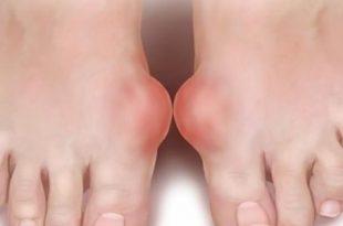 صوره ما هو مرض النقرس , اسباب و اعراض مرض النقرس و كيفيه العلاج منه