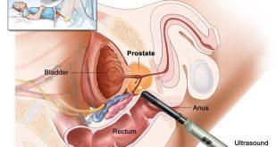 بالصور علاج البروستاتا , تعرف على البروستاتا اعراضها وطرق علاجها بالفيديو 619 3 310x165