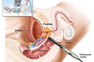 صوره علاج البروستاتا , تعرف على البروستاتا اعراضها وطرق علاجها بالفيديو