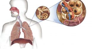 بالصور علاج مرض السل , السل وطريقة علاجه والوقاية منه 642 3 310x165