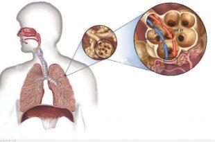صوره علاج مرض السل , السل وطريقة علاجه والوقاية منه