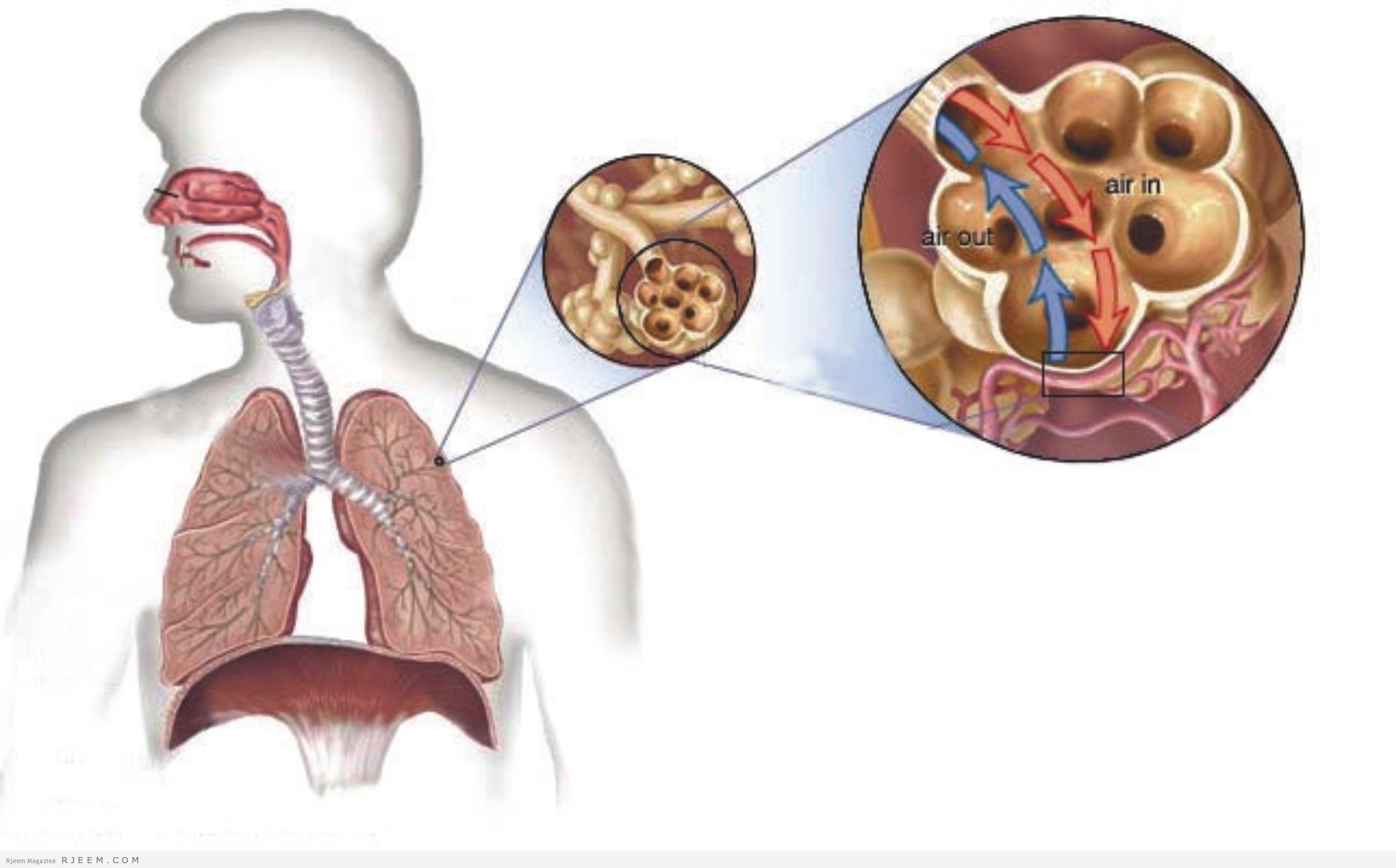 صورة علاج مرض السل , السل وطريقة علاجه والوقاية منه