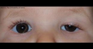 صورة تورم العين عند الاطفال , اسباب تورم عيبن الطفل الصغير
