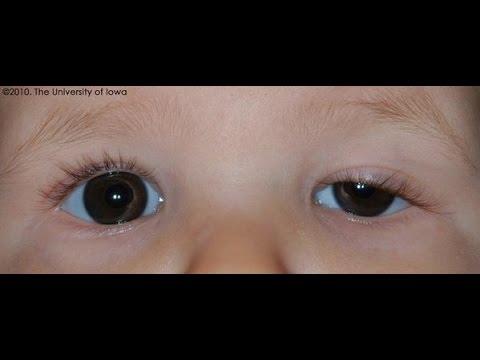 صور تورم العين عند الاطفال , اسباب تورم عيبن الطفل الصغير