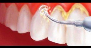 بالصور علاج جير الاسنان , افضل الاطباء فى علاج تعب الاسنان 15153 2 310x165