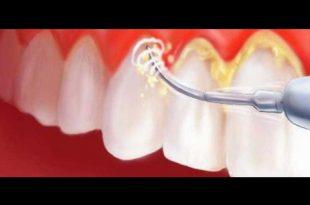 صورة علاج جير الاسنان , افضل الاطباء فى علاج تعب الاسنان