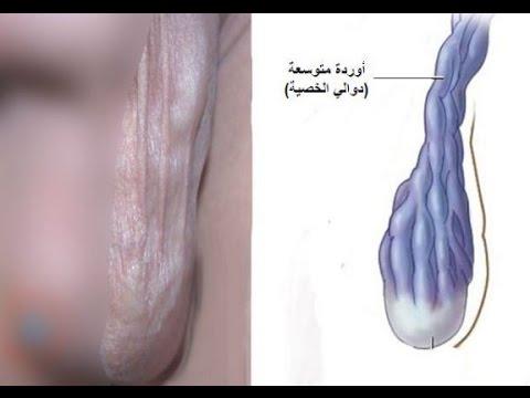 صورة علاج انتفاخ الخصية اليسرى بالاعشاب , علاج بعض الامراض بالاعشاب