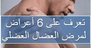 بالصور ما هو المرض العضال , اعراض المرض العضال 15213 2 310x165