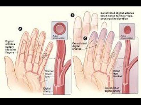 بالصور سبب برودة اليدين , اسباب برودة اليد 15261 1