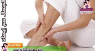 صورة اسباب تشنج العضلات , علاج التشجن من العضلات