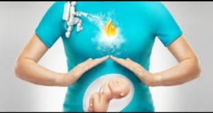 بالصور الحموضه في الشهور الاولى من الحمل , الحمل واعراض الحمل فى الشهور الاولى 15914 2 310x165