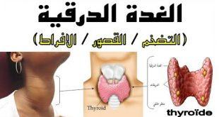صورة علاج الغدة الدرقية الخاملة , توفير العلاجات المناسبة للغدة الدراقية