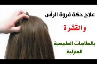 صورة ما هو علاج قشرة الشعر , اسباب القشرة داخل الشعر