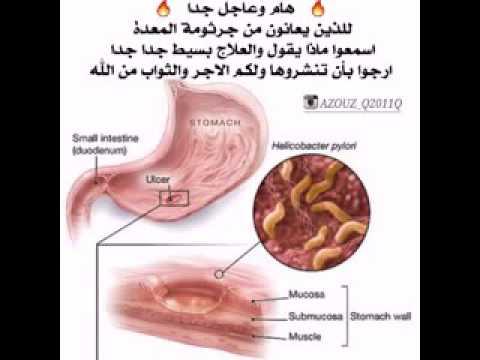 صور جرثومة المعدة وعلاجها , اعراض جرثومة المعدة والوقاية منها